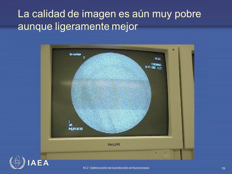 IAEA 16.2: Optimización de la protección en fluoroscopia 19 La calidad de imagen es aún muy pobre aunque ligeramente mejor