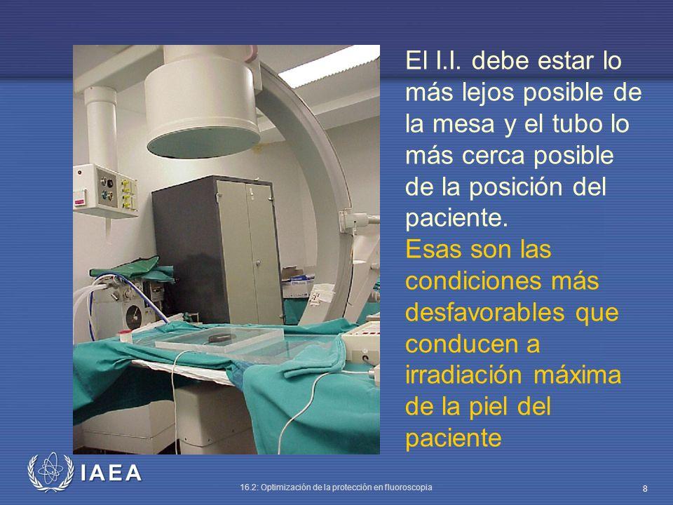 IAEA 16.2: Optimización de la protección en fluoroscopia 8 El I.I. debe estar lo más lejos posible de la mesa y el tubo lo más cerca posible de la pos