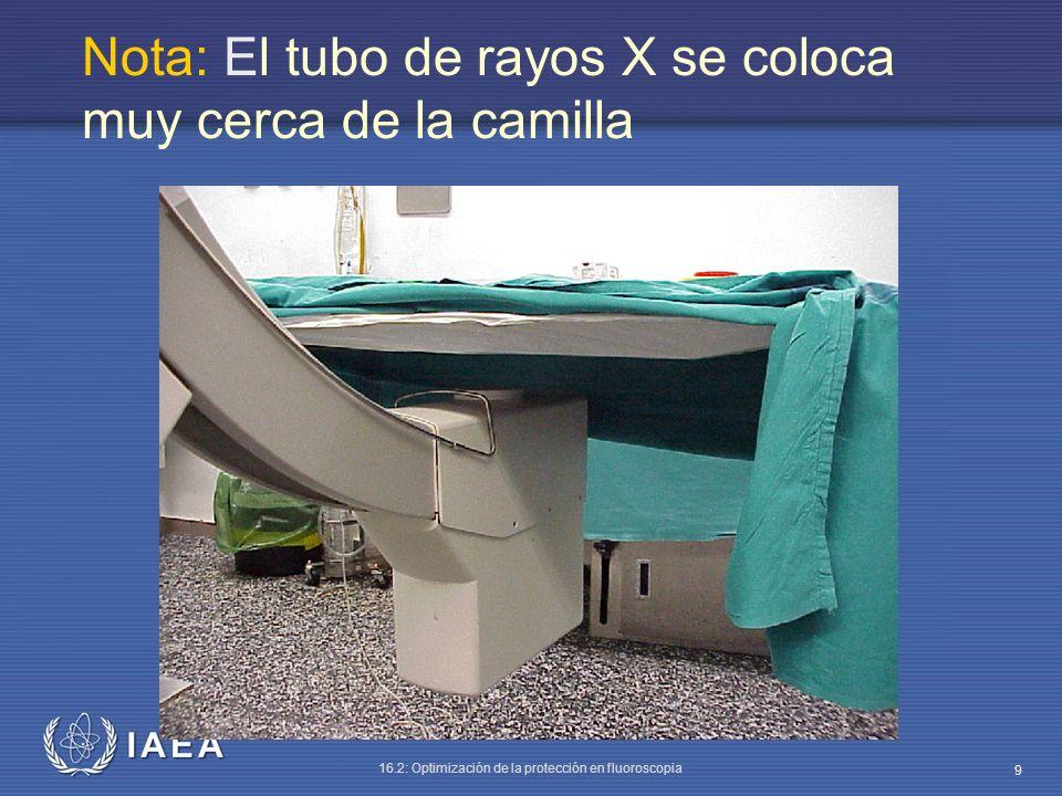 IAEA 16.2: Optimización de la protección en fluoroscopia 9 Nota: El tubo de rayos X se coloca muy cerca de la camilla