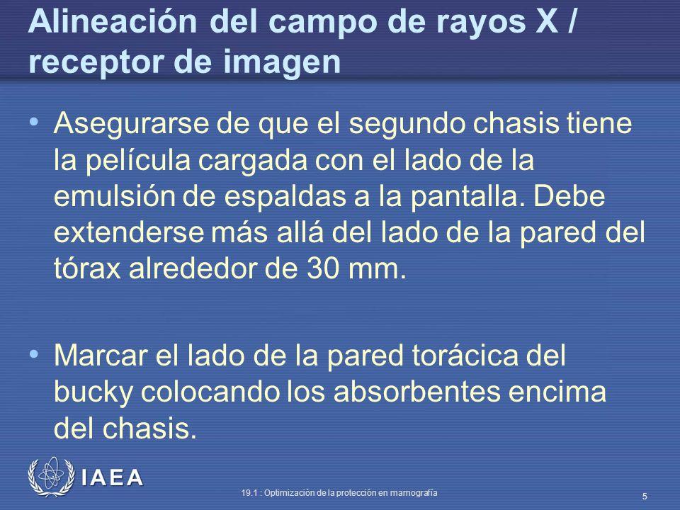 IAEA 19.1 : Optimización de la protección en mamografía 5 Alineación del campo de rayos X / receptor de imagen Asegurarse de que el segundo chasis tie