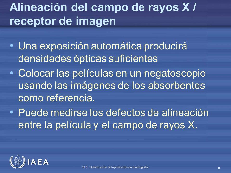 IAEA 19.1 : Optimización de la protección en mamografía 6 Alineación del campo de rayos X / receptor de imagen Una exposición automática producirá den