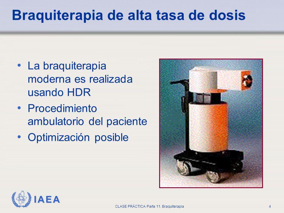 IAEA CLASE PRÁCTICA Parte 11. Braquiterapia4 Braquiterapia de alta tasa de dosis La braquiterapia moderna es realizada usando HDR Procedimiento ambula