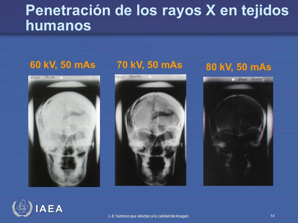 IAEA L.8: factores que afectan a la calidad de imagen 14 Penetración de los rayos X en tejidos humanos 60 kV, 50 mAs 70 kV, 50 mAs 80 kV, 50 mAs