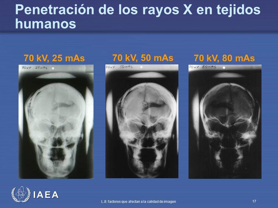 IAEA L.8: factores que afectan a la calidad de imagen 17 Penetración de los rayos X en tejidos humanos 70 kV, 25 mAs 70 kV, 50 mAs 70 kV, 80 mAs