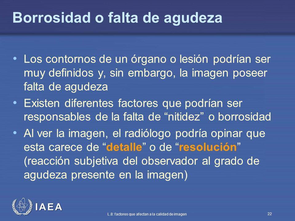IAEA L.8: factores que afectan a la calidad de imagen 22 Borrosidad o falta de agudeza Los contornos de un órgano o lesión podrían ser muy definidos y