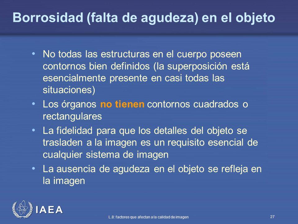 IAEA L.8: factores que afectan a la calidad de imagen 27 Borrosidad (falta de agudeza) en el objeto No todas las estructuras en el cuerpo poseen conto
