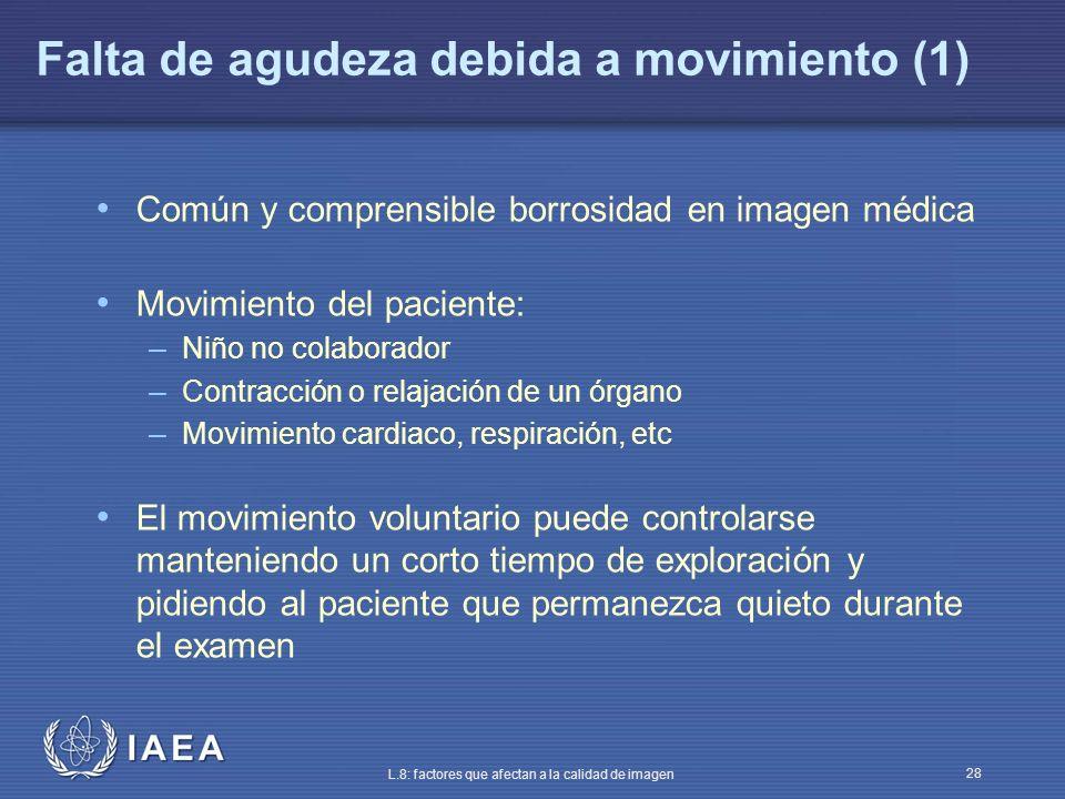 IAEA L.8: factores que afectan a la calidad de imagen 28 Falta de agudeza debida a movimiento (1) Común y comprensible borrosidad en imagen médica Mov
