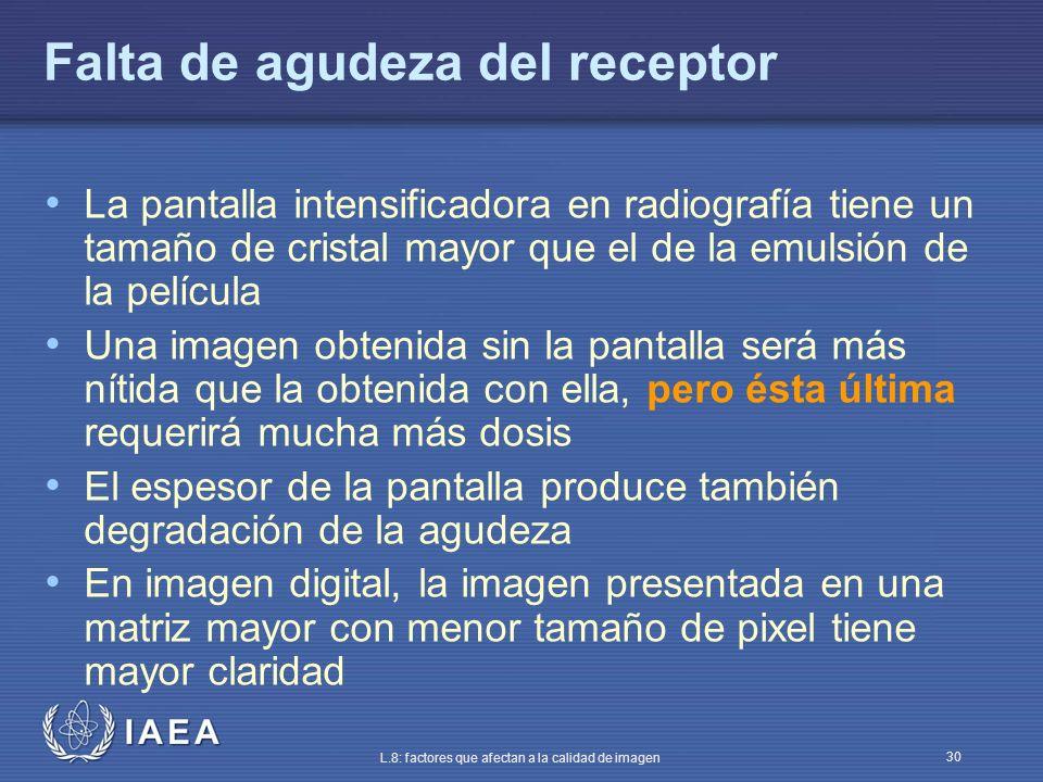 IAEA L.8: factores que afectan a la calidad de imagen 30 Falta de agudeza del receptor La pantalla intensificadora en radiografía tiene un tamaño de c