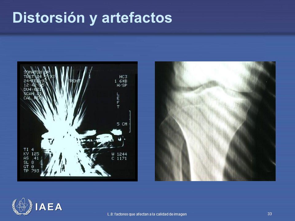 IAEA L.8: factores que afectan a la calidad de imagen 33 Distorsión y artefactos