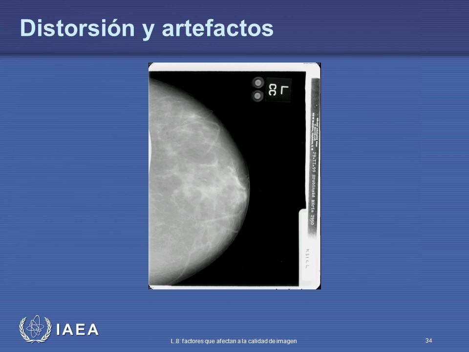 IAEA L.8: factores que afectan a la calidad de imagen 34 Distorsión y artefactos