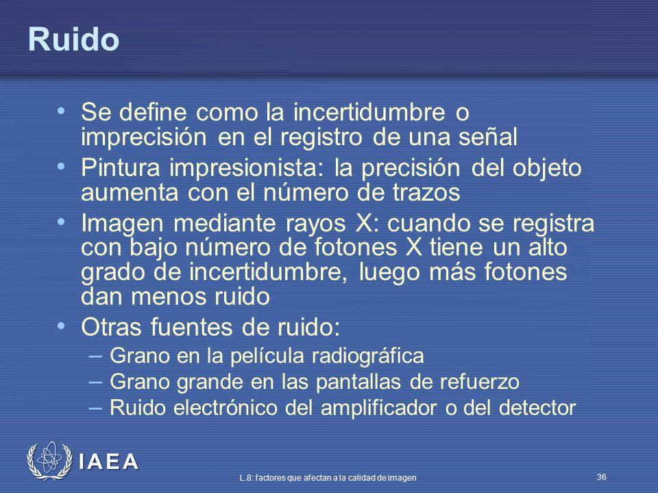 IAEA L.8: factores que afectan a la calidad de imagen 36 Ruido Se define como la incertidumbre o imprecisión en el registro de una señal Pintura impre
