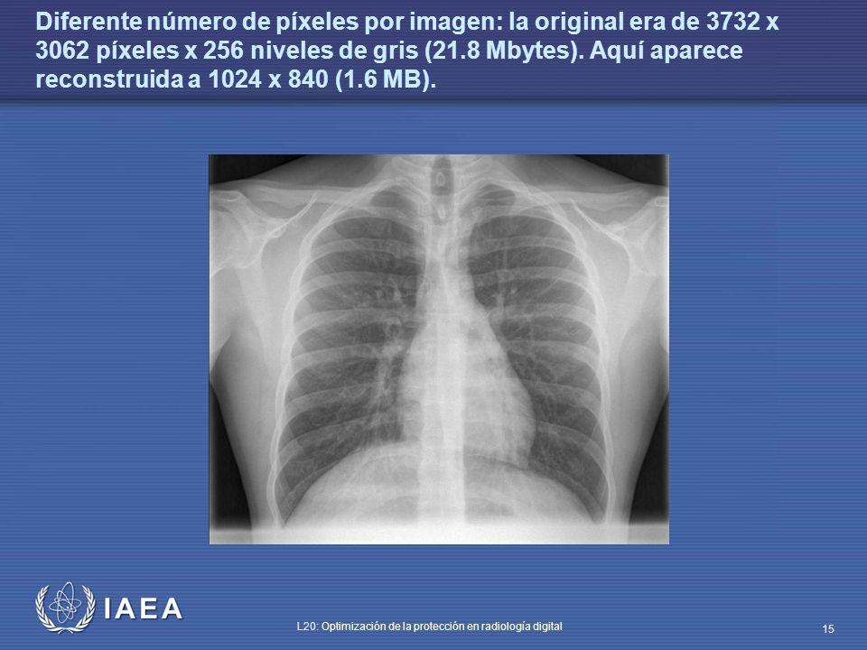 IAEA L20: Optimización de la protección en radiología digital 15 Diferente número de píxeles por imagen: la original era de 3732 x 3062 píxeles x 256