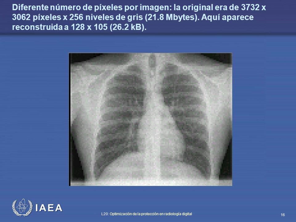 IAEA L20: Optimización de la protección en radiología digital 16 Diferente número de píxeles por imagen: la original era de 3732 x 3062 píxeles x 256