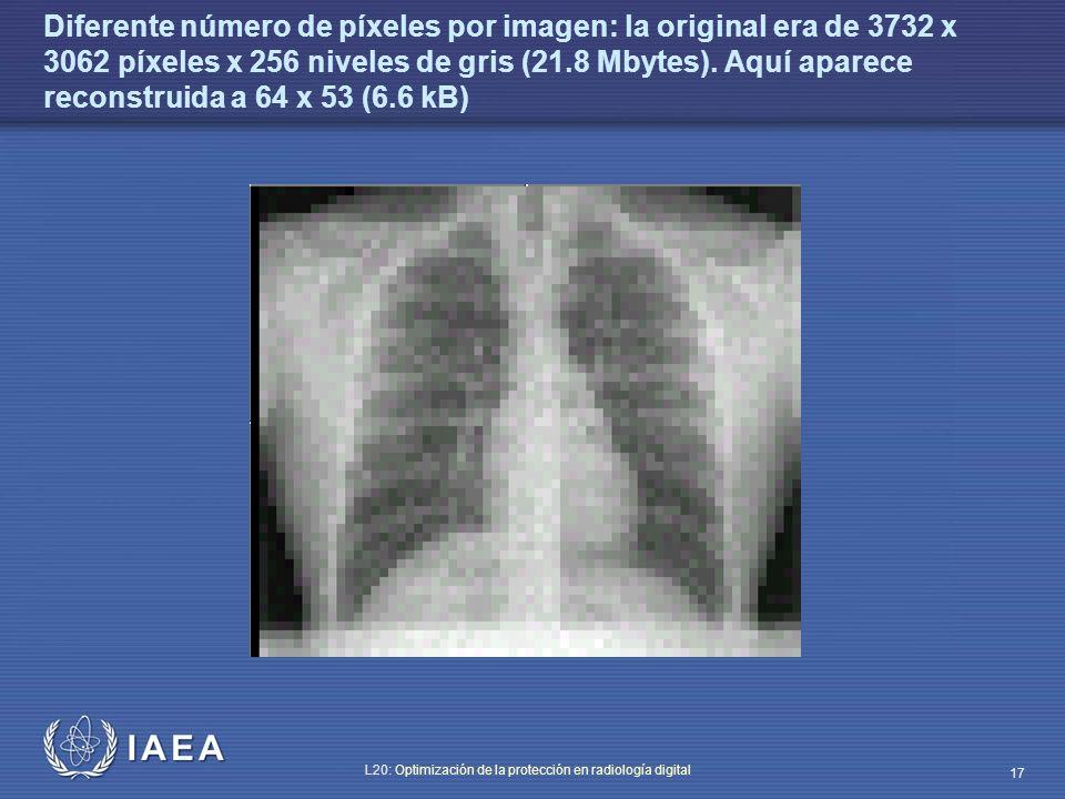 IAEA L20: Optimización de la protección en radiología digital 17 Diferente número de píxeles por imagen: la original era de 3732 x 3062 píxeles x 256