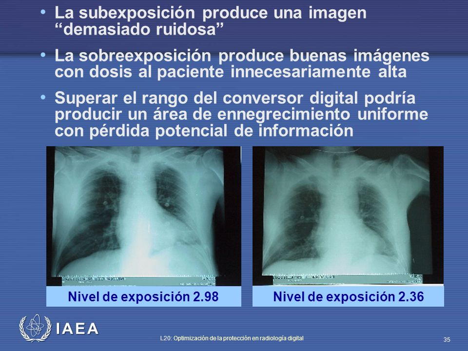 IAEA L20: Optimización de la protección en radiología digital 35 La subexposición produce una imagen demasiado ruidosa La sobreexposición produce buen