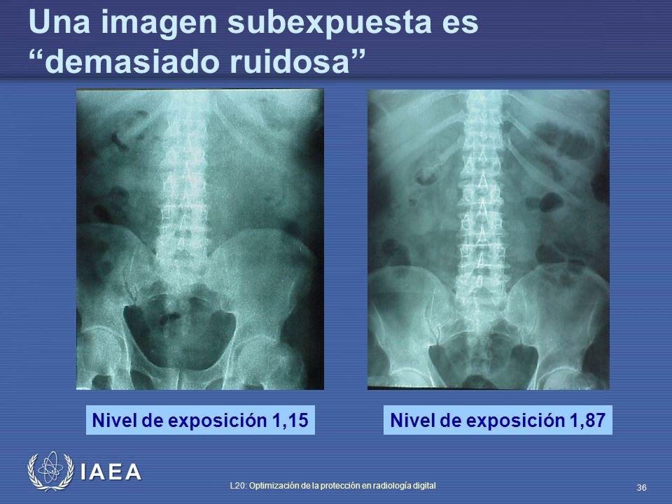 IAEA L20: Optimización de la protección en radiología digital 36 Nivel de exposición 1,15Nivel de exposición 1,87 Una imagen subexpuesta es demasiado