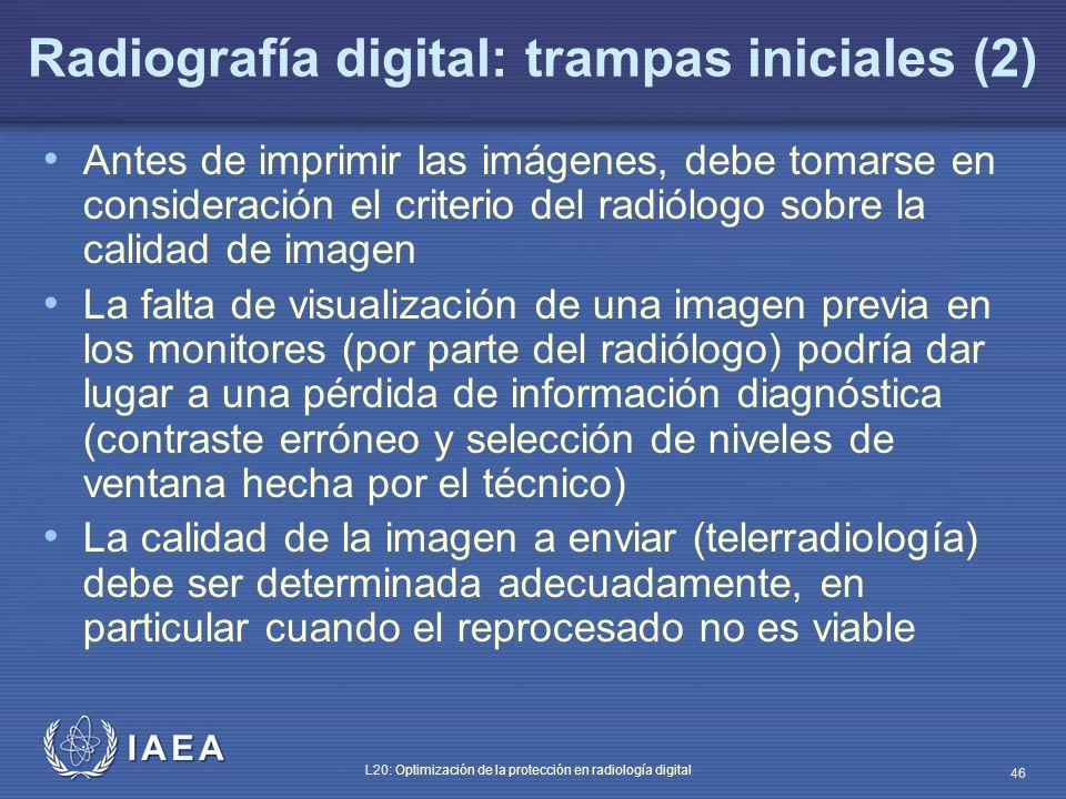 IAEA L20: Optimización de la protección en radiología digital 46 Radiografía digital: trampas iniciales (2) Antes de imprimir las imágenes, debe tomar