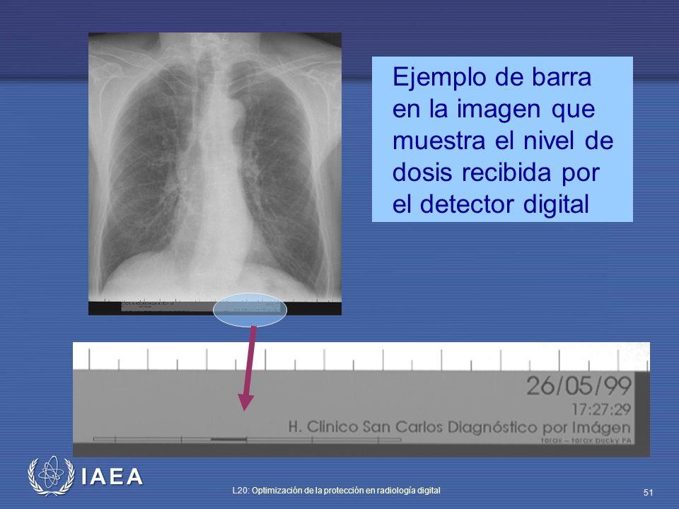 IAEA L20: Optimización de la protección en radiología digital 51 Ejemplo de barra en la imagen que muestra el nivel de dosis recibida por el detector