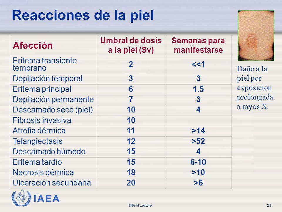 IAEA Title of Lecture21 Reacciones de la piel Daño a la piel por exposición prolongada a rayos X Afección Umbral de dosis a la piel (Sv) Semanas para