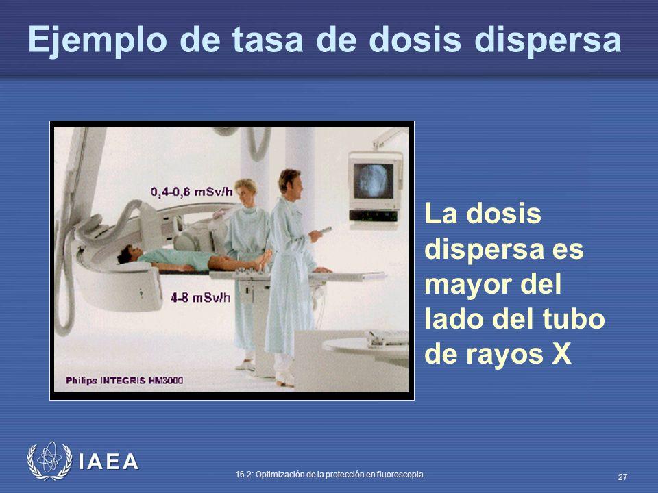 IAEA 16.2: Optimización de la protección en fluoroscopia 27 La dosis dispersa es mayor del lado del tubo de rayos X Ejemplo de tasa de dosis dispersa