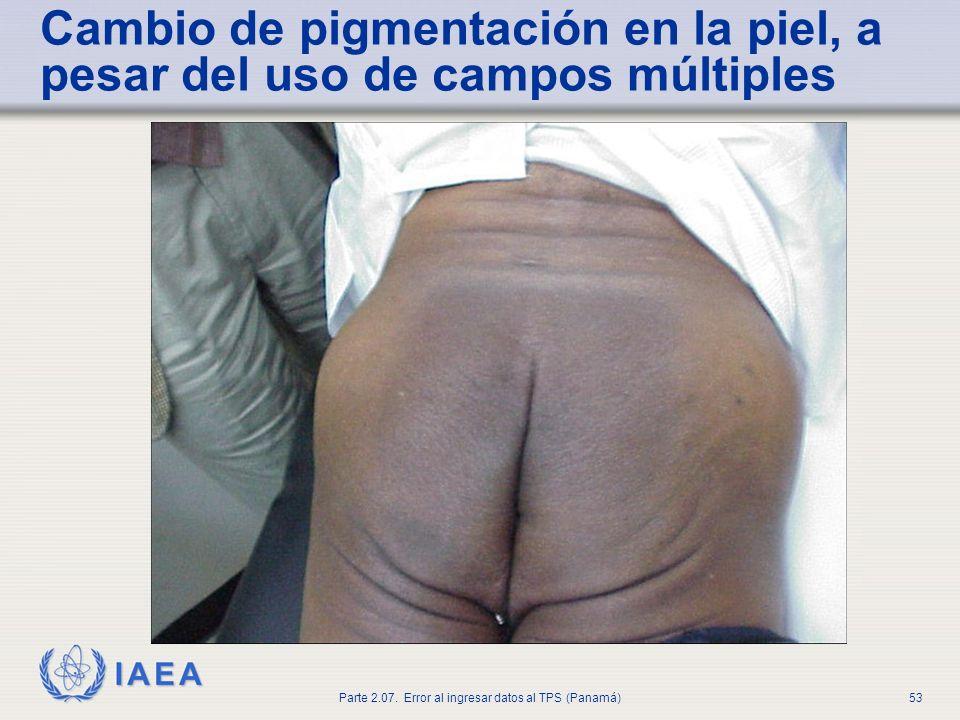 IAEA Parte 2.07. Error al ingresar datos al TPS (Panamá)54 Tejido fibrótico y estenosis del recto