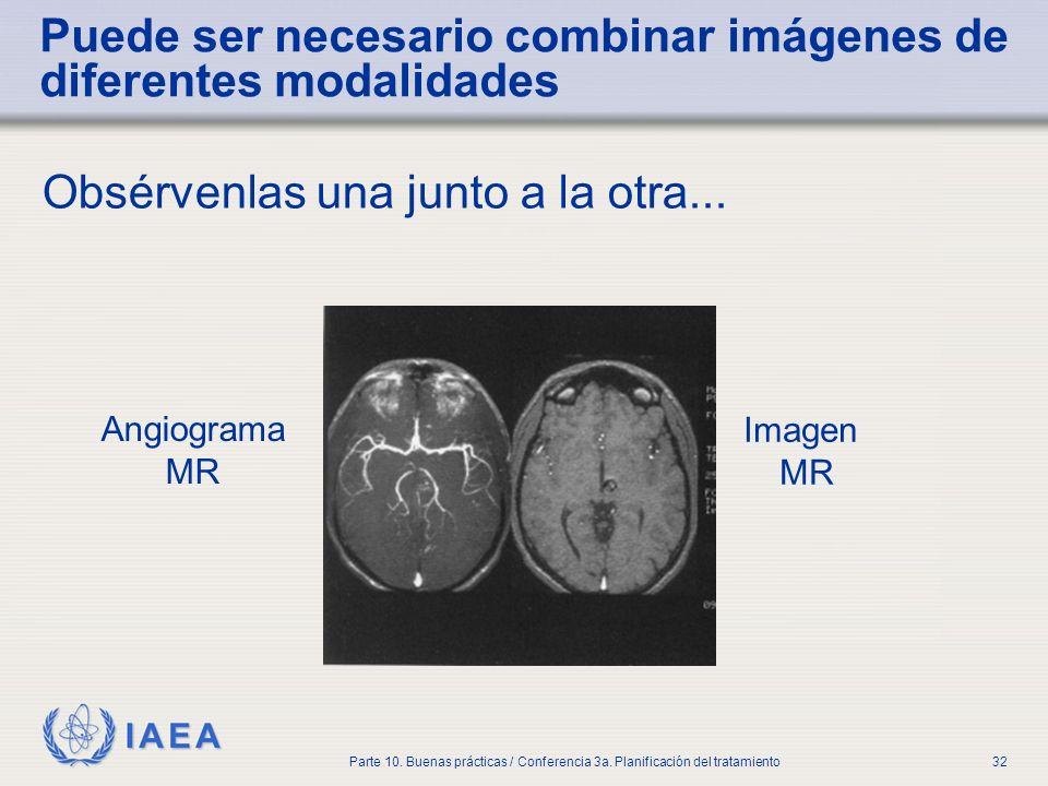 IAEA Parte 10. Buenas prácticas / Conferencia 3a. Planificación del tratamiento32 Puede ser necesario combinar imágenes de diferentes modalidades Obsé