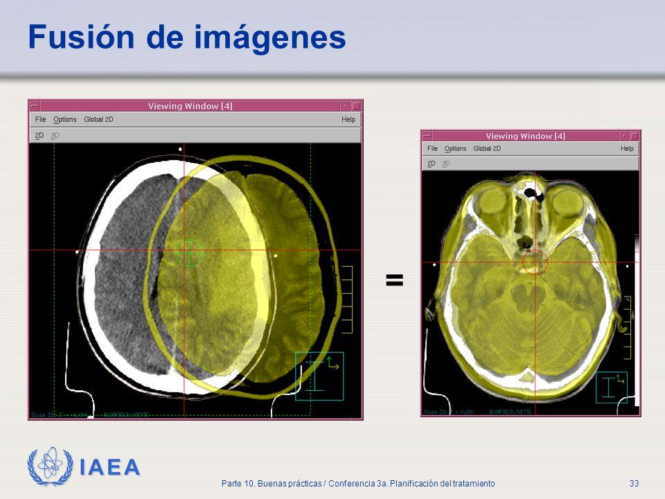 IAEA Parte 10. Buenas prácticas / Conferencia 3a. Planificación del tratamiento33 Fusión de imágenes =