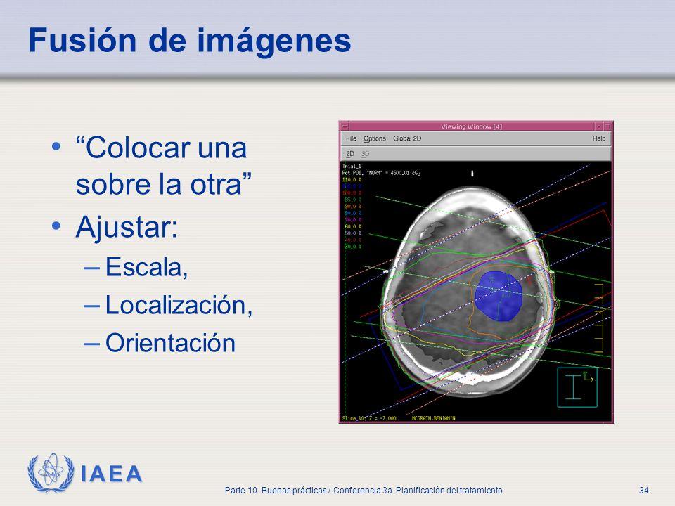 IAEA Parte 10. Buenas prácticas / Conferencia 3a. Planificación del tratamiento34 Fusión de imágenes Colocar una sobre la otra Ajustar: – Escala, – Lo