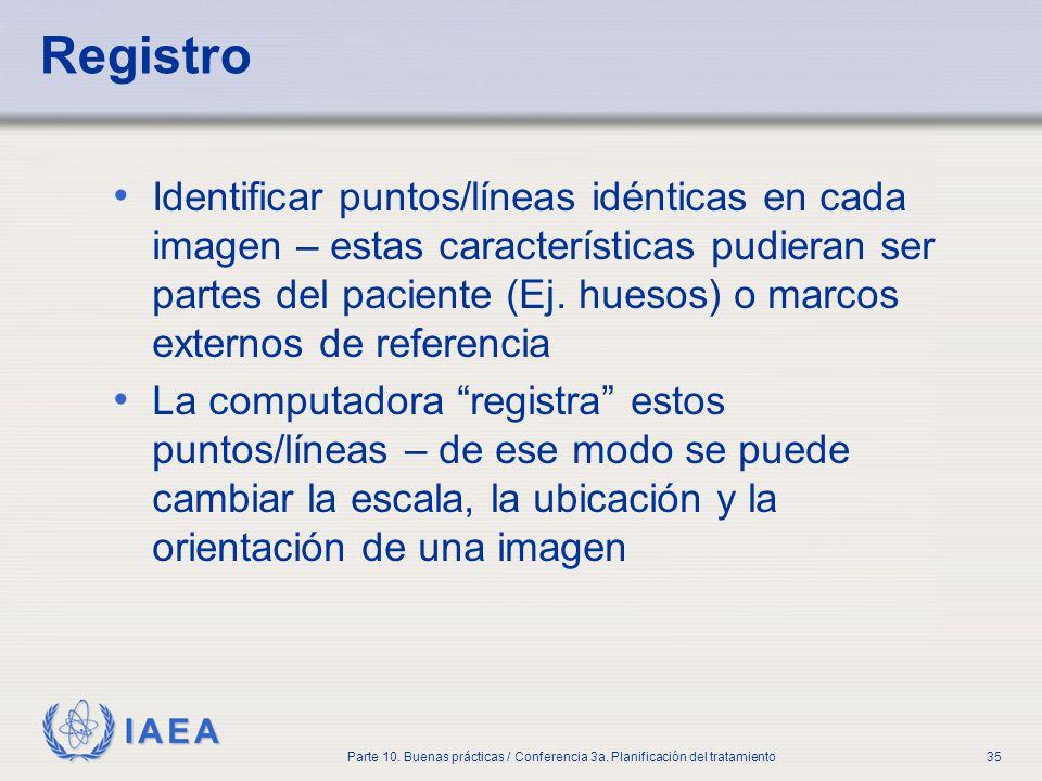 IAEA Parte 10. Buenas prácticas / Conferencia 3a. Planificación del tratamiento35 Registro Identificar puntos/líneas idénticas en cada imagen – estas