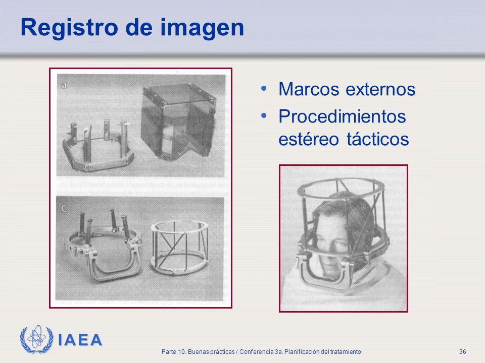 IAEA Parte 10. Buenas prácticas / Conferencia 3a. Planificación del tratamiento36 Registro de imagen Marcos externos Procedimientos estéreo tácticos