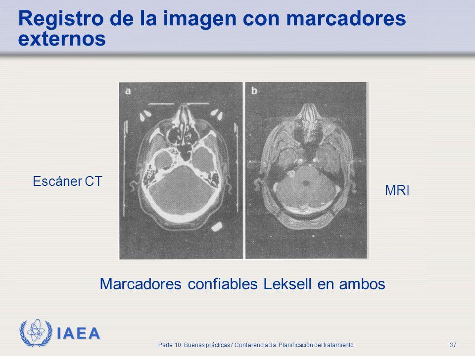 IAEA Parte 10. Buenas prácticas / Conferencia 3a. Planificación del tratamiento37 Registro de la imagen con marcadores externos Escáner CT MRI Marcado