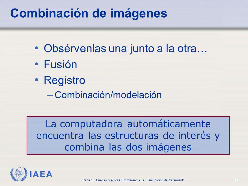 IAEA Parte 10. Buenas prácticas / Conferencia 3a. Planificación del tratamiento38 Combinación de imágenes Obsérvenlas una junto a la otra… Fusión Regi
