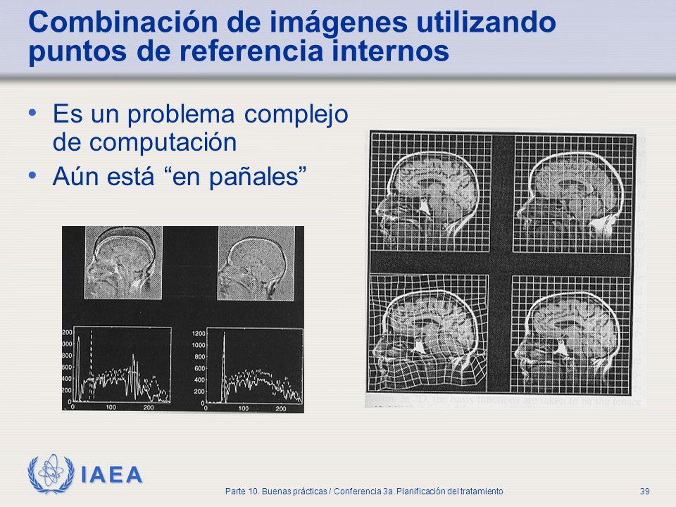 IAEA Parte 10. Buenas prácticas / Conferencia 3a. Planificación del tratamiento39 Combinación de imágenes utilizando puntos de referencia internos Es