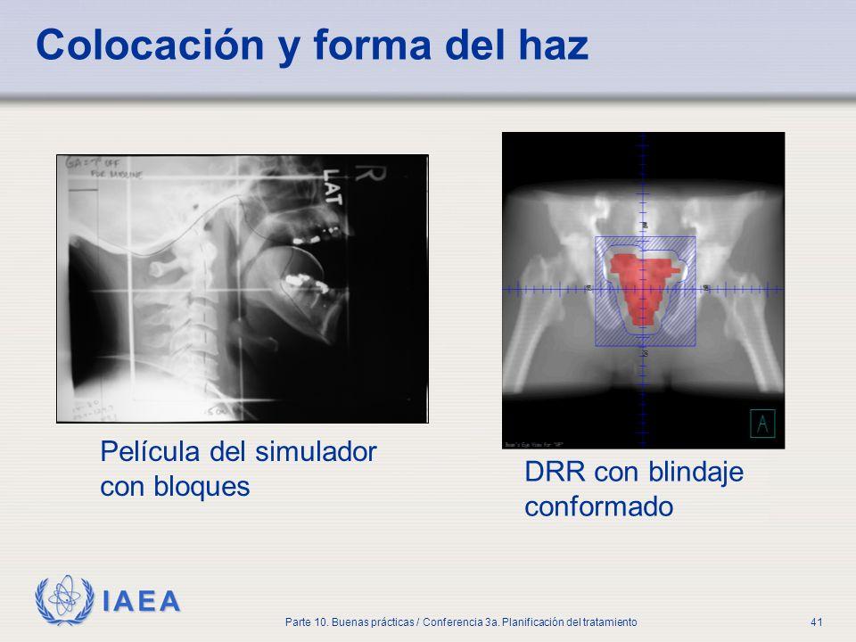 IAEA Parte 10. Buenas prácticas / Conferencia 3a. Planificación del tratamiento41 Colocación y forma del haz DRR con blindaje conformado Película del