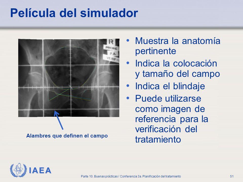 IAEA Parte 10. Buenas prácticas / Conferencia 3a. Planificación del tratamiento51 Película del simulador Muestra la anatomía pertinente Indica la colo