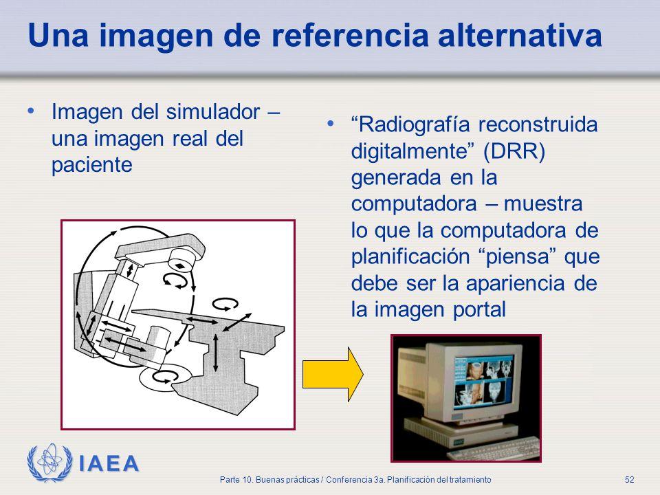 IAEA Parte 10. Buenas prácticas / Conferencia 3a. Planificación del tratamiento52 Una imagen de referencia alternativa Imagen del simulador – una imag
