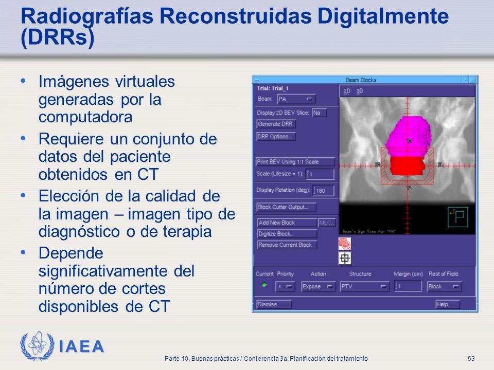 IAEA Parte 10. Buenas prácticas / Conferencia 3a. Planificación del tratamiento53 Radiografías Reconstruidas Digitalmente (DRRs) Imágenes virtuales ge
