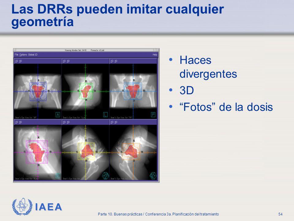 IAEA Parte 10. Buenas prácticas / Conferencia 3a. Planificación del tratamiento54 Las DRRs pueden imitar cualquier geometría Haces divergentes 3D Foto