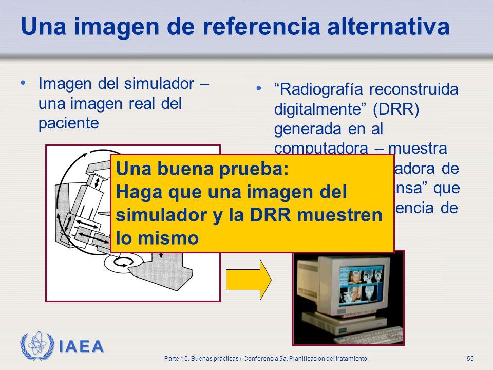 IAEA Parte 10. Buenas prácticas / Conferencia 3a. Planificación del tratamiento55 Una imagen de referencia alternativa Imagen del simulador – una imag