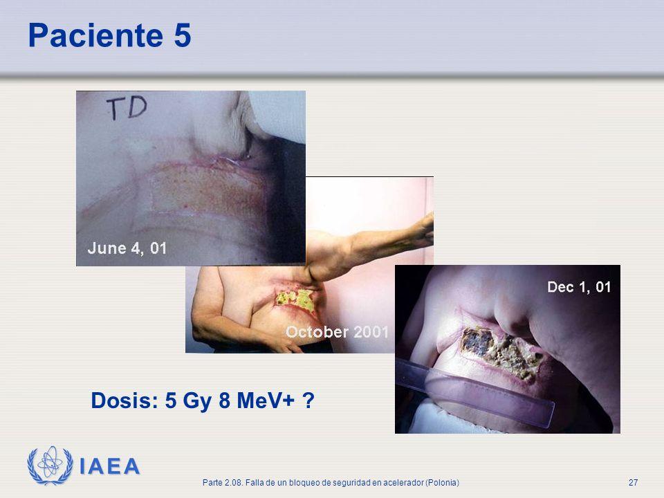 IAEA Parte 2.08. Falla de un bloqueo de seguridad en acelerador (Polonia)27 Paciente 5 Dosis: 5 Gy 8 MeV+ ?