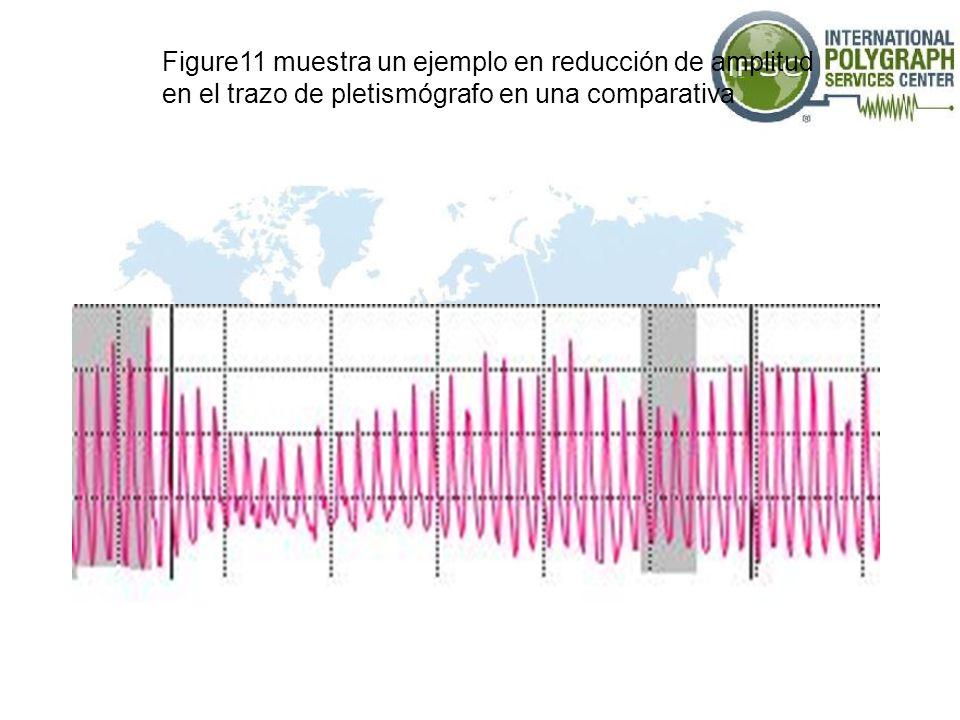 Figure11 muestra un ejemplo en reducción de amplitud en el trazo de pletismógrafo en una comparativa