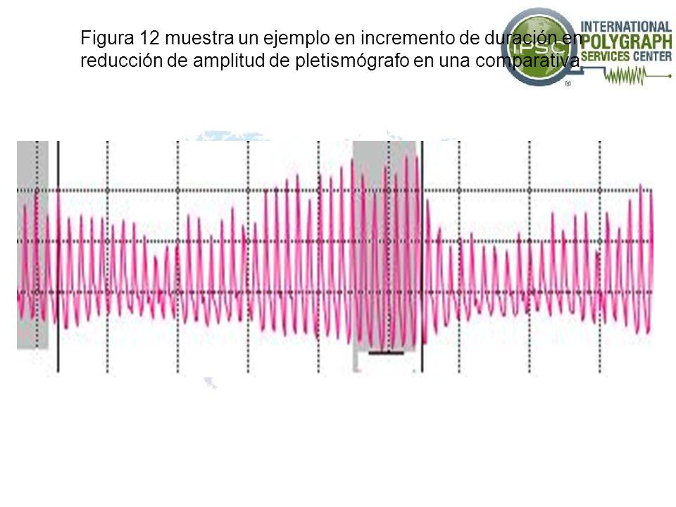 Figura 12 muestra un ejemplo en incremento de duración en reducción de amplitud de pletismógrafo en una comparativa