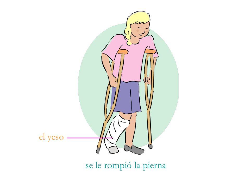 se le rompió la pierna el yeso