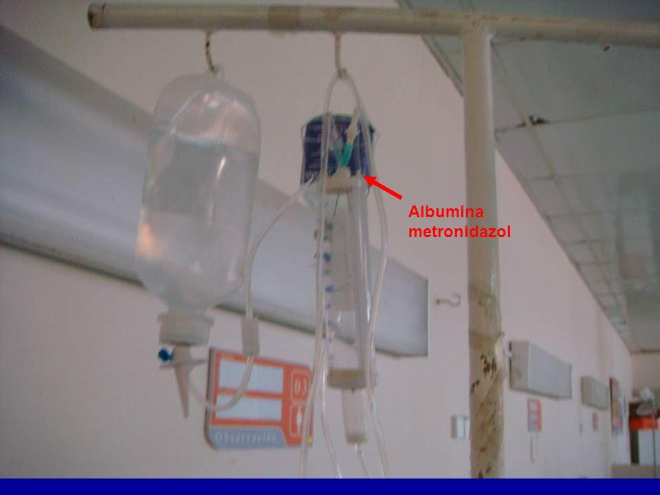 Albumina metronidazol