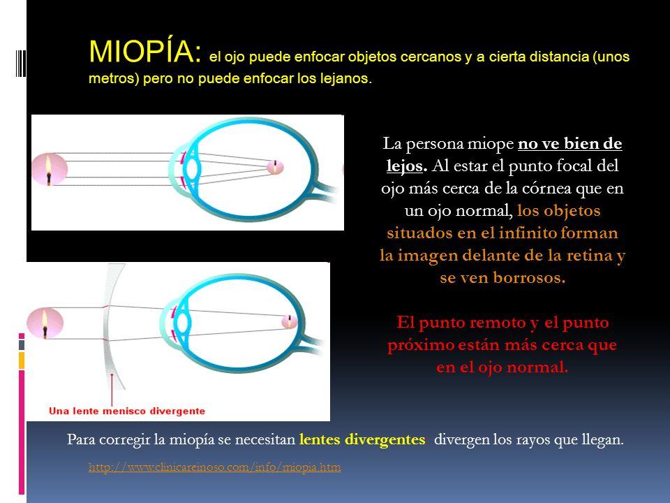 MIOPÍA: el ojo puede enfocar objetos cercanos y a cierta distancia (unos metros) pero no puede enfocar los lejanos. no ve bien de lejos. La persona mi
