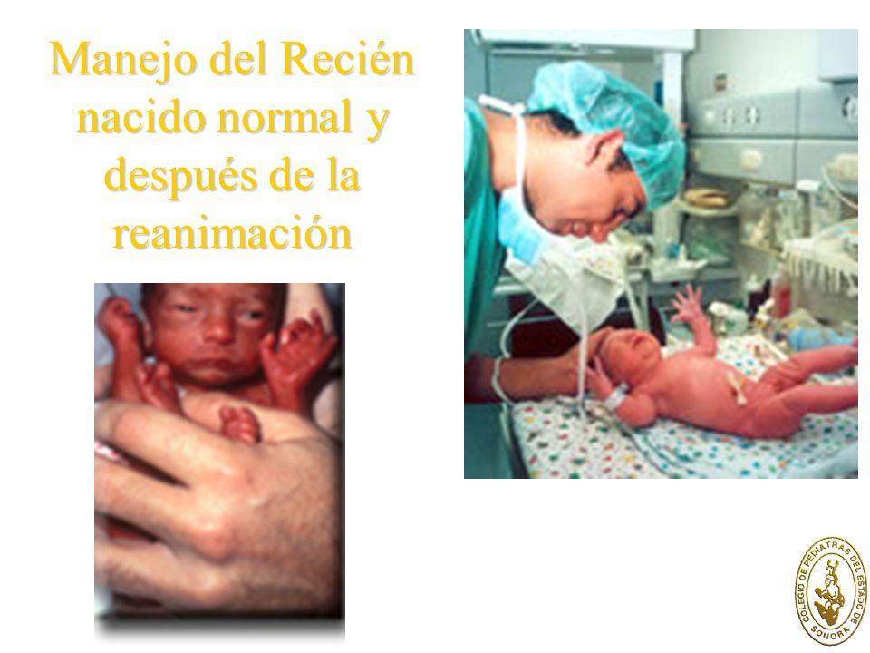 Manejo del Recién nacido normal y después de la reanimación