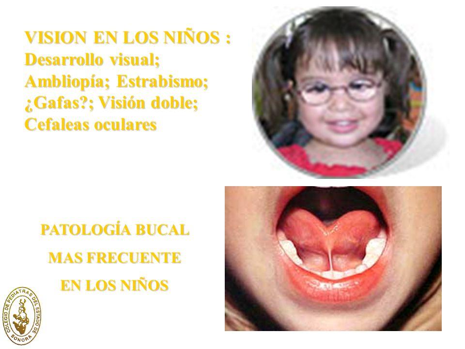 VISION EN LOS NIÑOS : Desarrollo visual; Ambliopía; Estrabismo; ¿Gafas ; Visión doble; Cefaleas oculares PATOLOGÍA BUCAL MAS FRECUENTE EN LOS NIÑOS