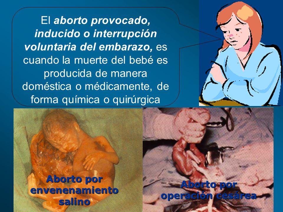 El aborto provocado, inducido o interrupción voluntaria del embarazo, es cuando la muerte del bebé es producida de manera doméstica o médicamente, de