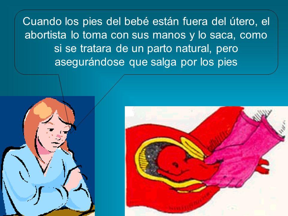 Cuando los pies del bebé están fuera del útero, el abortista lo toma con sus manos y lo saca, como si se tratara de un parto natural, pero asegurándos