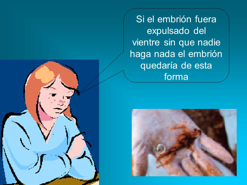 Si el embrión fuera expulsado del vientre sin que nadie haga nada el embrión quedaría de esta forma